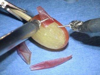 Χειρουργική ακρίβεια ρομποτικης χειρουργικής DaVinci